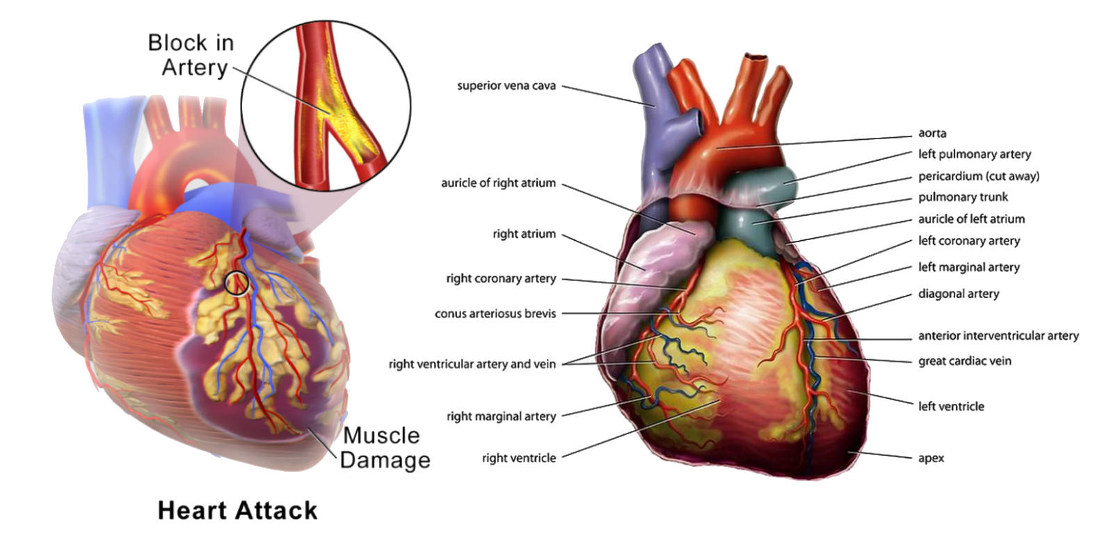 6 Unusual Heart Disease Signs - What Should You Do?