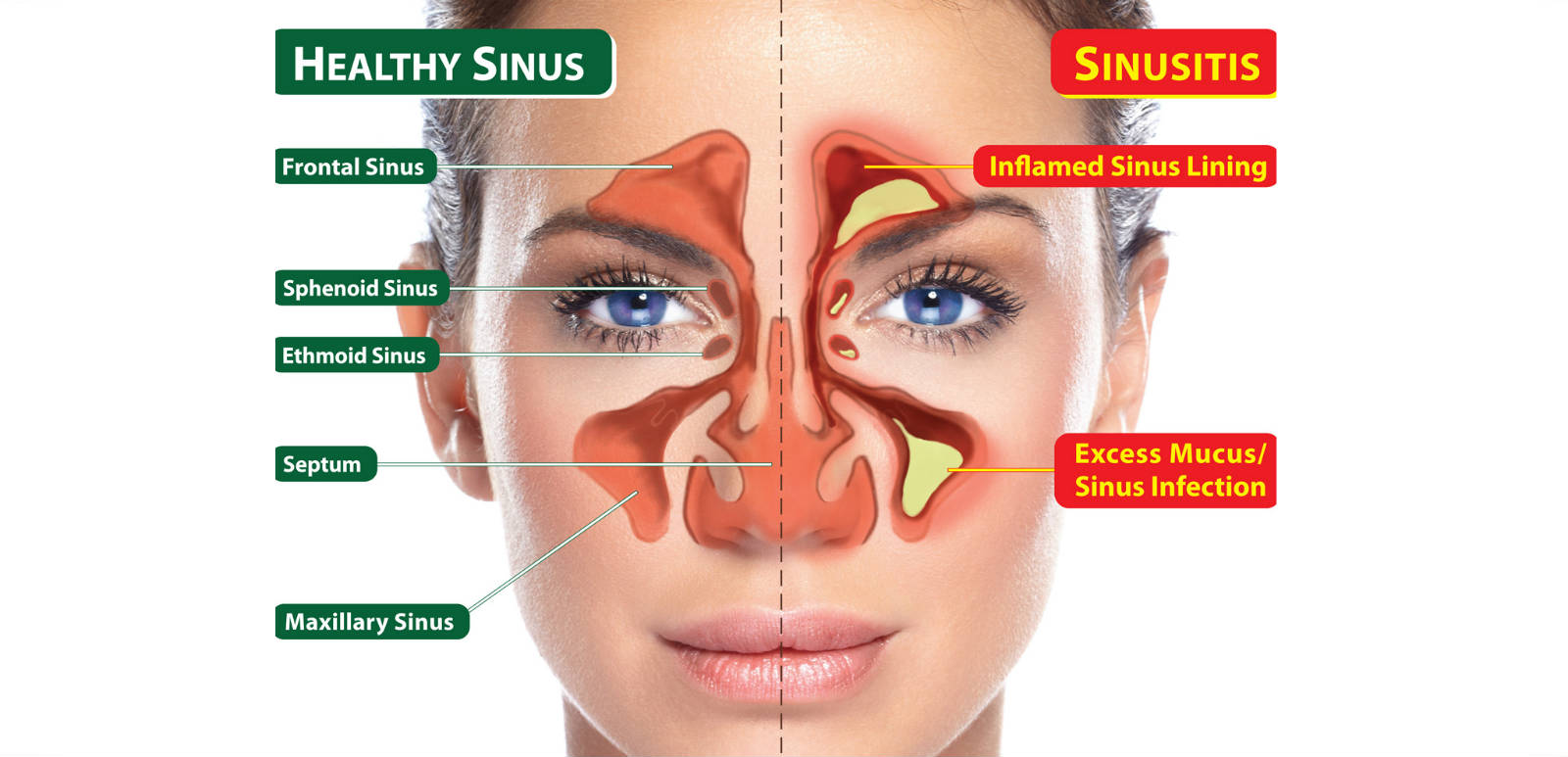 The Best 6 Sinus Infection Home Remedies
