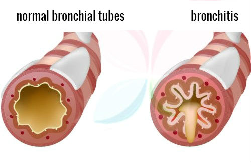 Home remedies for asthmatic bronchitis information and natural