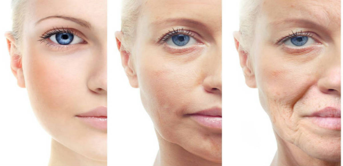 The Best 8 Natural Remedies for Sagging Skin