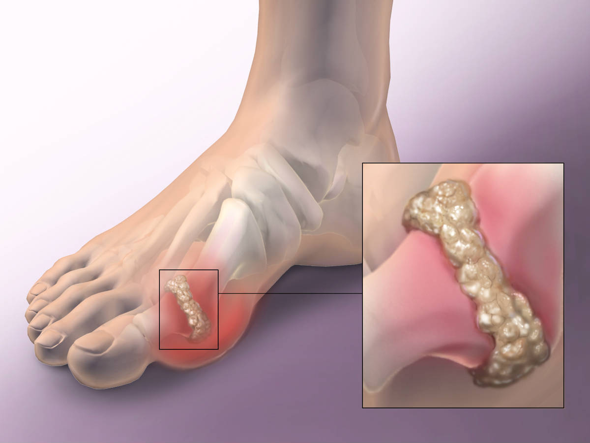 how to control uric acid in body how to get rid of gout naturally causes of decreased uric acid