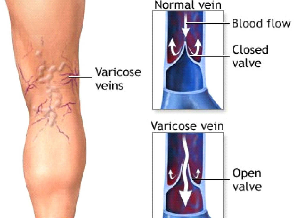 How To Improve Your Varicose Veins Naturally