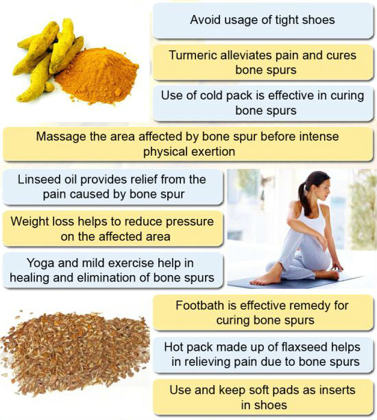 Top 9 Bone Spurs Home Remedies | Health And Love Page