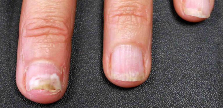 Nail Fungus Home Remedies Featured