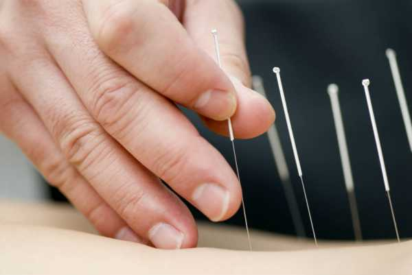 Acupuncture, Eastern Medicine and Blood Pressure