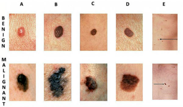 How To Recognize Skin Cancer