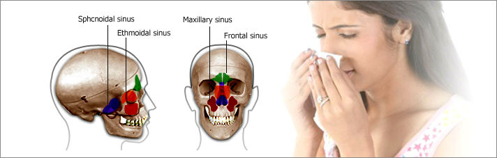 Relieve Your Sinus Infection