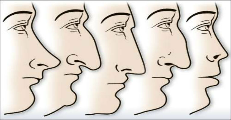 The Shape Of Your Nose Says a Lot About You
