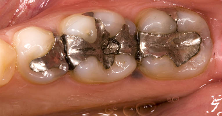 Killer in Your Mouth - Remove Amalgam Fillings and You Will Be Healed of Many Diseases