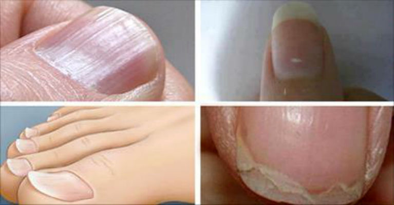 7 Common Nail Conditions Linked to Serious Diseases That You Shouldn't Ignore