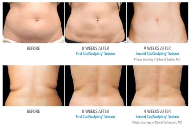 Kill Fat Cells Instantly Just By Freezing Them! (You'll Never Believe How It Works) 1
