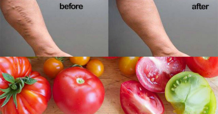 Using Tomatoes to Deal with Varicose Veins Featured