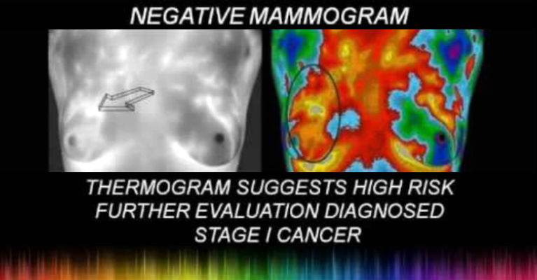 Mammograms Don't Help They Harm Women - Featured