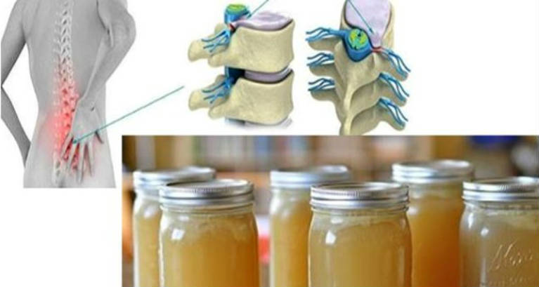 The Miracle of the Recipe – Will Heal Pain in Your Back Legs Ankles