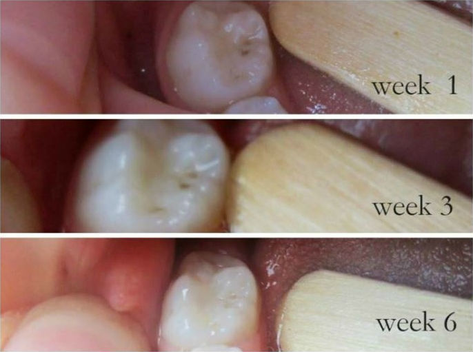 How To Heal Your Teeth Naturally without Visiting Your Dentist