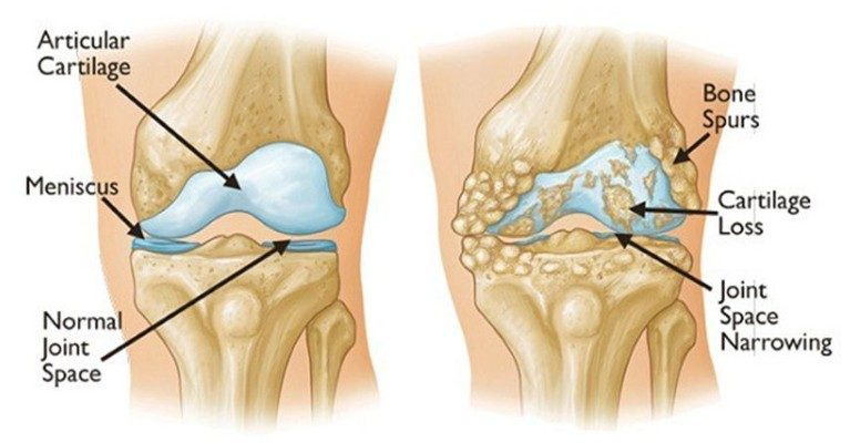 Get Rid of Joint, Back And Knee Pain With This Superfood in Less Than a Week