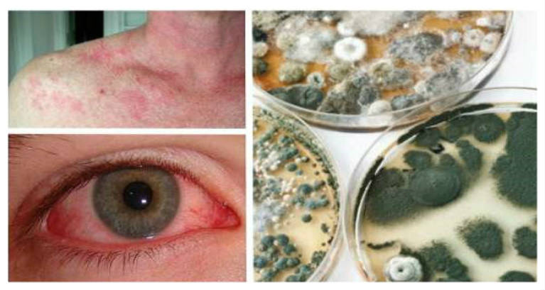 14 Early Warning Signs Of Mold Toxicity Everyone Should Know Millions Are Exposed Every Day Health And Love Page