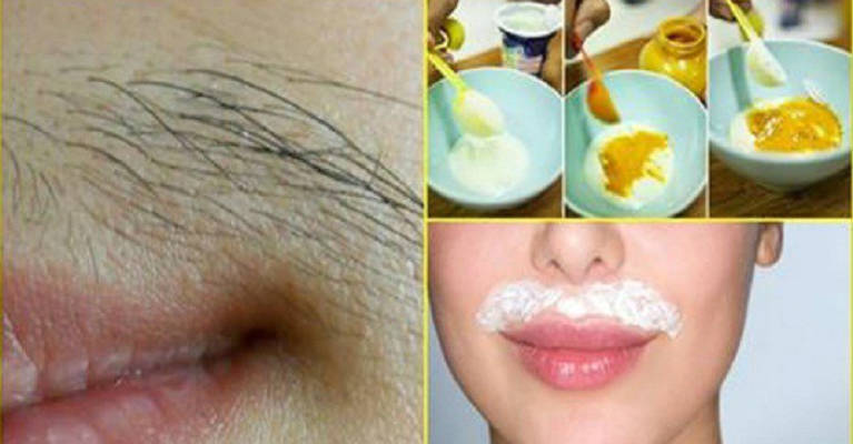 Hair removal in face naturally-6331