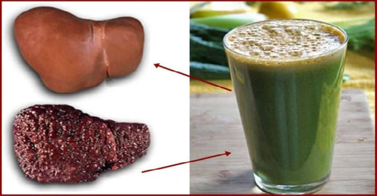 The Best Natural Beverage For Cleansing Fatty Liver