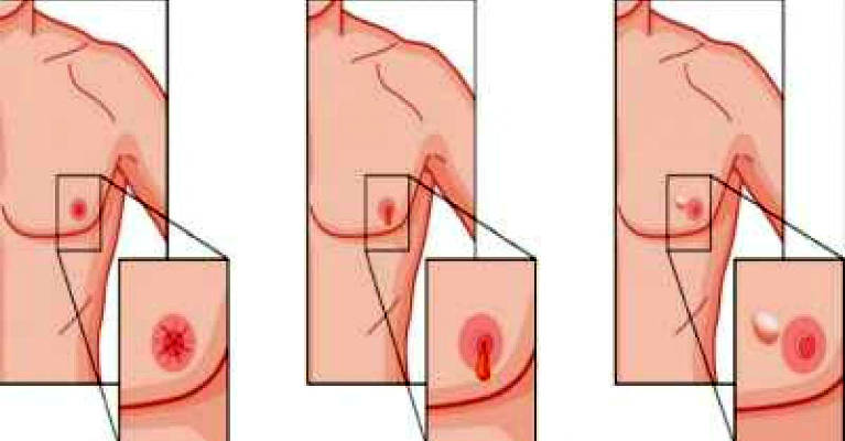 13 Early Symptoms of Cancer Men Should Be Aware of