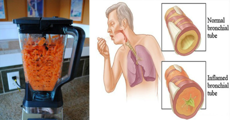 CARROTS the Natural Food to Removing Cough and Phlegm from your Lungs