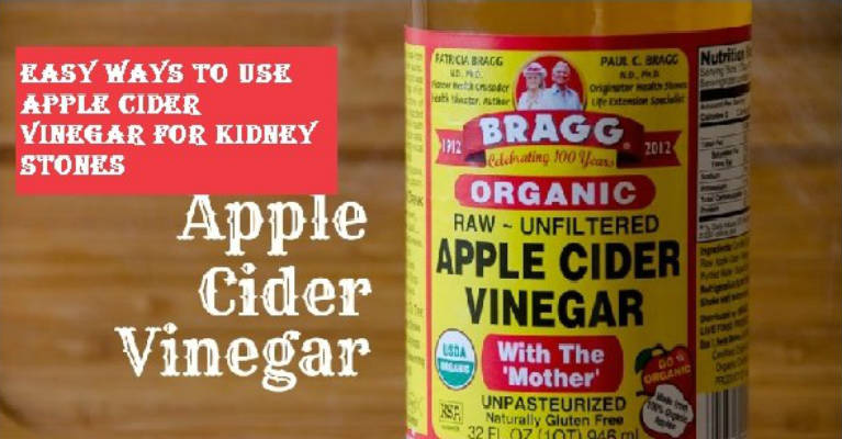 Easy Ways To Use Apple Cider Vinegar For Kidney Stones