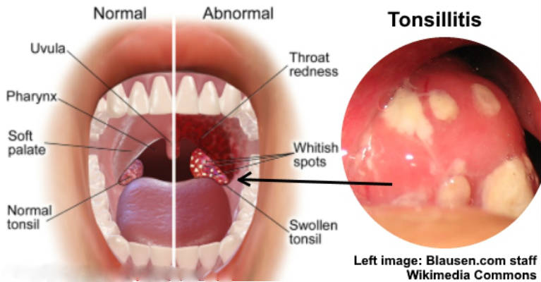 Say Goodbye to Tonsillitis and Throat Pain with these Home Remedies