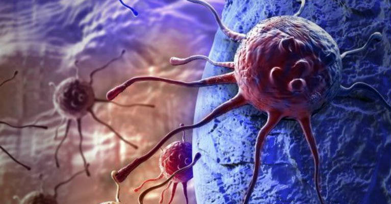 20 IMPORTANT Things for Prevention and Treatment of Cancer According to John Hopkins Hospital You MUST Know