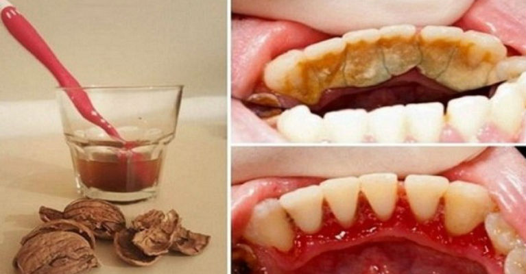 Get Rid of Tooth Plaque, Tartar, and Bleeding Gums in a Very Simple and Easy Way Without Pain