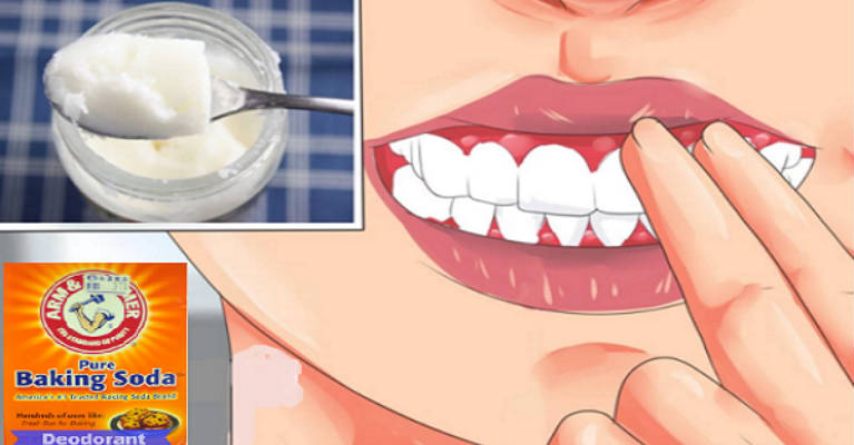 Gum Diseases Are Silent Killers – 7 Natural Ways How to Heal Them