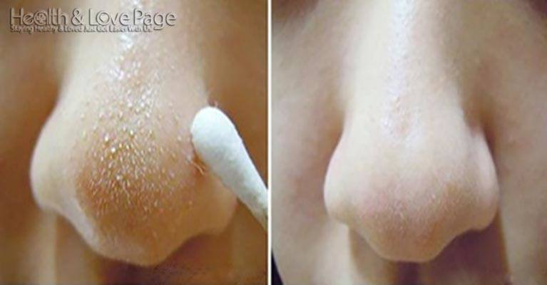 Indian Home Remedies For Blocked Nose