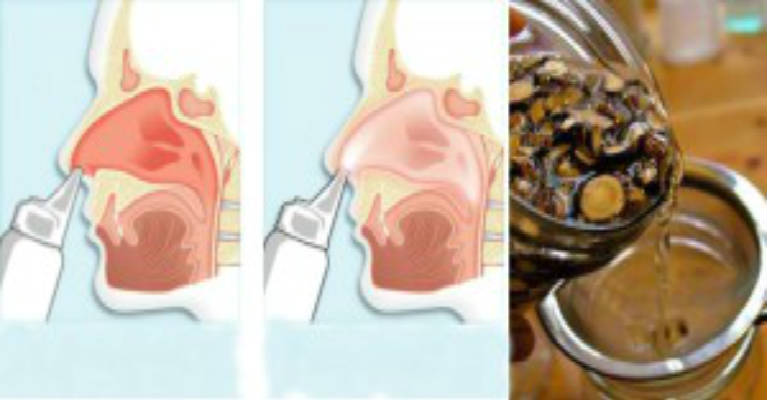 Miraculous Water for Nasal Irrigation Say Goodbye to Your Allergies-Featured
