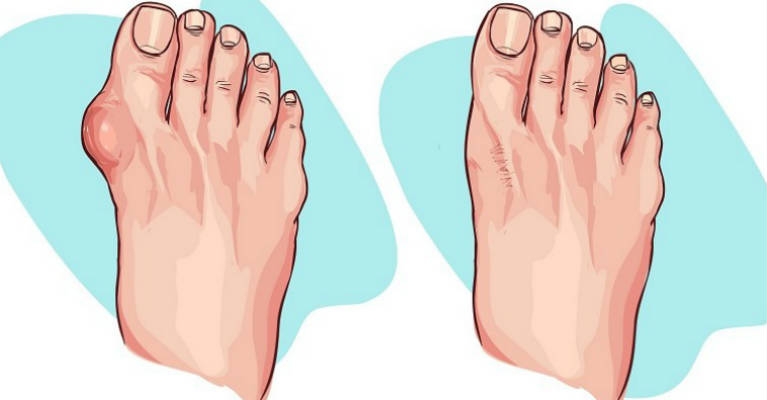 Reduce Bunion Size with these 5 Natural Remedies