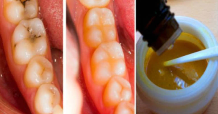 Reverse Cavities Naturally and Heal Tooth Decay with THIS Powerful Tooth Mask