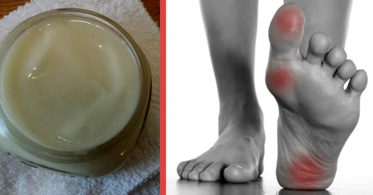 Rub This Homemade Magnesium Lotion on Your Skin for Muscle and Leg Pain Relief
