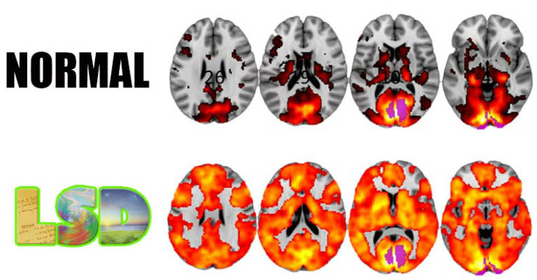 Scientists Just Took Images Of The Brains Of People On LSD & The Results Are Revolutionary - Featured