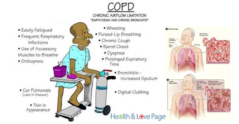 1 chronic obstructive pulmonary disease and 1-16 of 243 results for copd chronic obstructive pulmonary disease in patients with chronic obstructive pulmonary disease (copd), including chronic bronchitis.