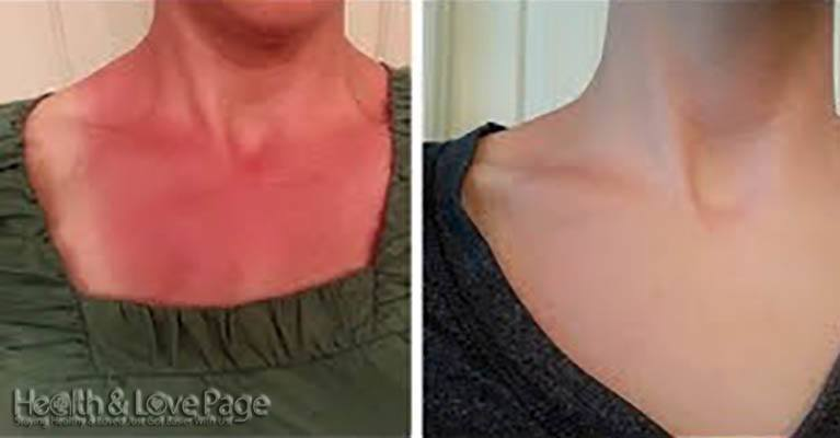 She's Got A Terrible Sunburn, But It Disappears After She Applies Just 2 Simple Ingredients