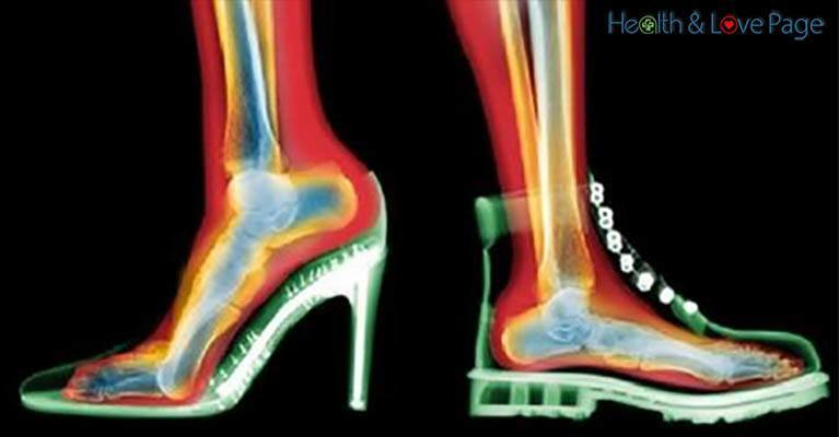 THIS is What Your Shoes are Doing to Your Knees and Back!