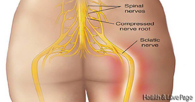 Say Goodbye to Back Pain in Natural Way! Successful In 95% of Cases