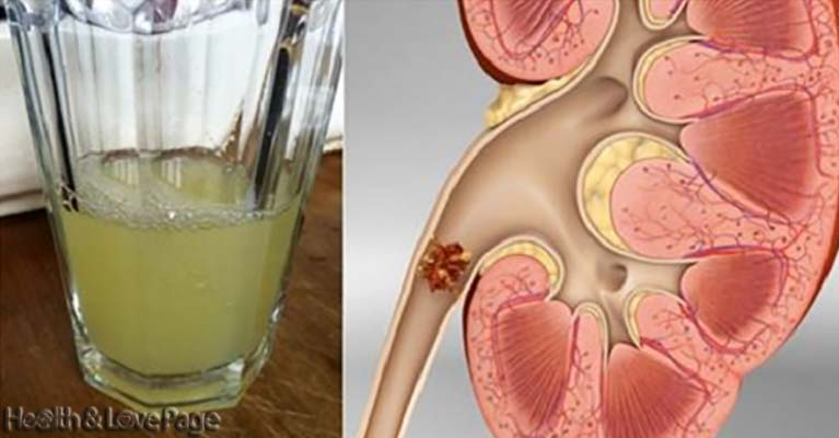 Say Goodbye to Your Kidney Stones with Only Half a Cup of This Drink