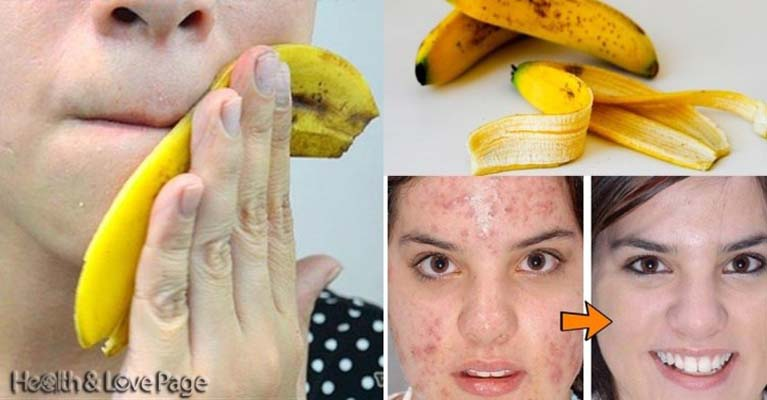She Rubs A Banana Peel On Her Face And This Happens To Her Acne!
