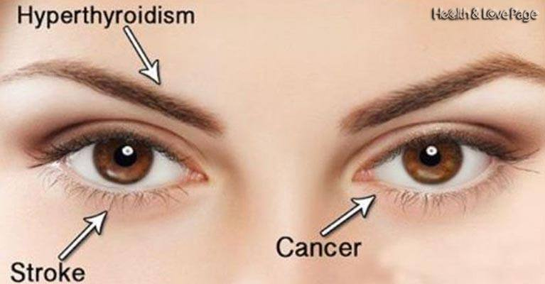14 Things Your Eyes Can Tell You About Your Health (If you know what look for)