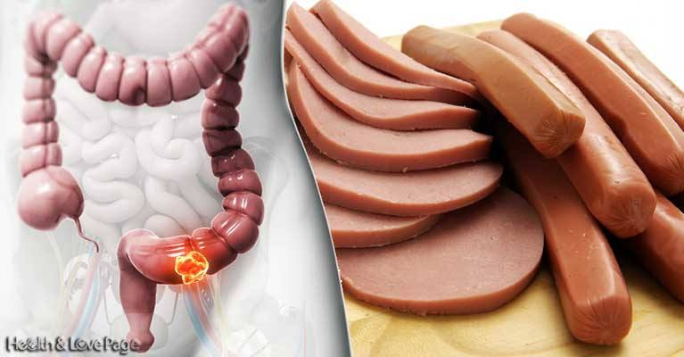 8 Cancer-Causing Foods You Should NEVER Eat!
