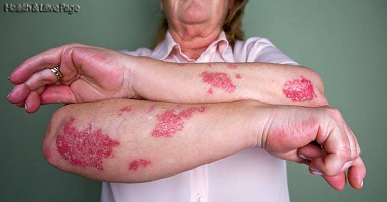New 'Invisible' Foam to Ease Psoriasis Skin Condition