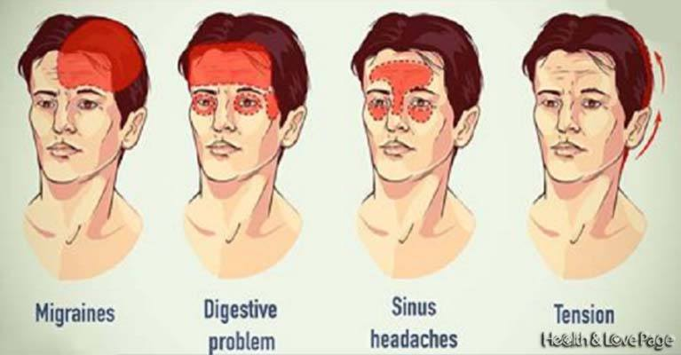 Top 10 Natural Headache Remedies That Work