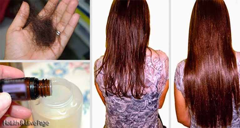 add-these-two-ingredients-to-your-shampoo-and-say-goodbye-to-hair-loss-forever