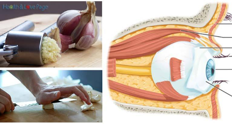 How to Use Garlic to Reverse Eyesight Loss without Glasses or Surgery