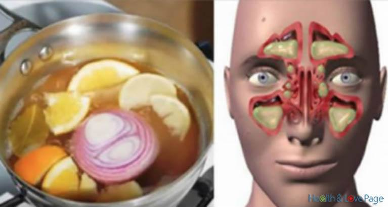 Top #1 Natural Cure against Flu and Cold in Just One Day
