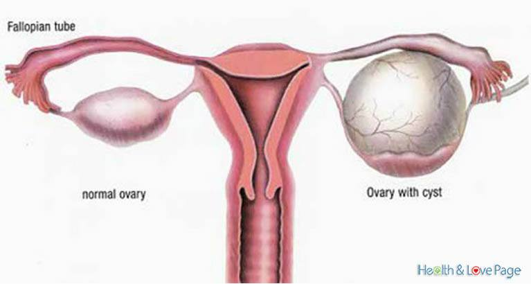 6-little-known-remedies-to-clean-your-ovary-cysts
